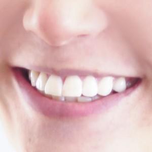 storitve zobozdravnik