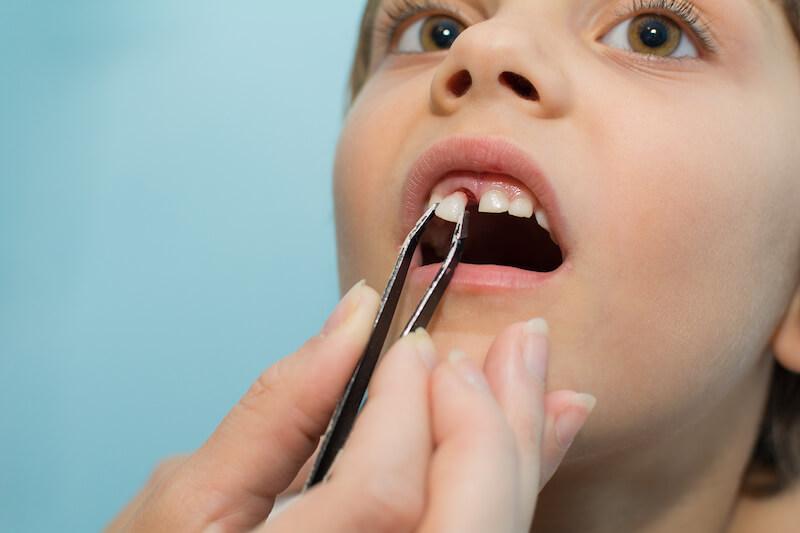 Poškodba otroških zob